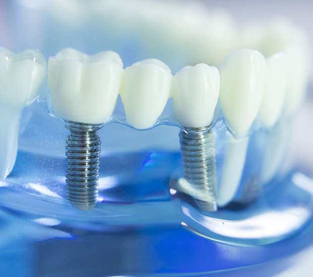 Lancaster Dental Implants